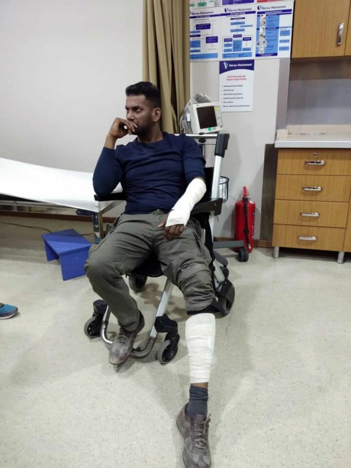 Vishal Injury